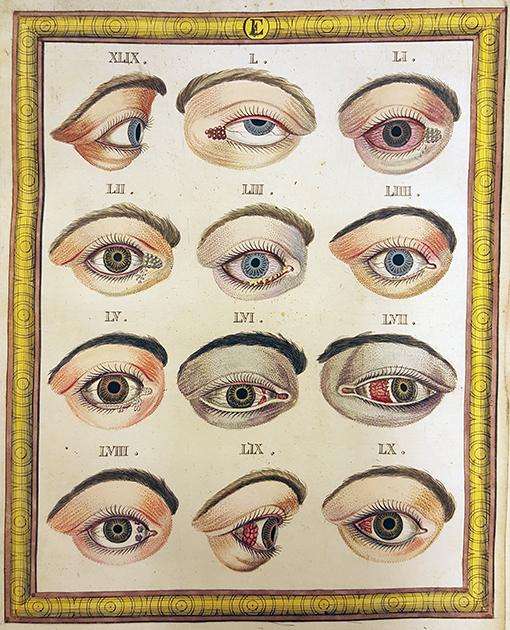 planschblad med infekterade ögon